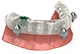dental surgical guide