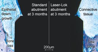 Laser-Lok