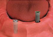 dental implant placement - dental implant-stabilized overdenture