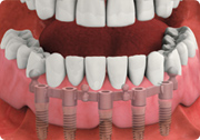 attach custom overdenture - removable dental implant-supported overdenture