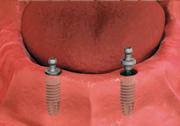 overdenture fitting - dental implant-stabilized overdenture