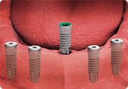 dental implant placement - fixed dental implant-supported overdenture