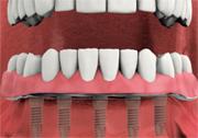 make custom overdenture - fixed dental implant-supported overdenture