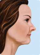 profile after tooth loss