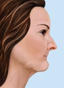 profile after bone loss