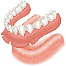 implant supported denture vs traditional denture