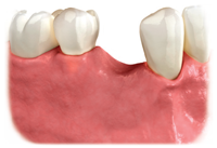 untreated missing tooth