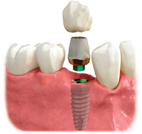 dental implant with a crown