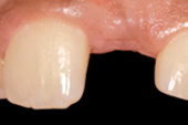Tapered Internal dental implant